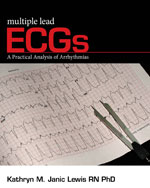 Multiple Lead ECGs: A Practical Analysis of Arrhythmias, 1st Edition, 978-1-4354-4124-8